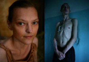 Krokodil pictures reveal a horror show